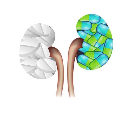 丸薬腎臓の形。腎臓の白い錠剤とカラフルなカプセル。腎臓の処置の概念。