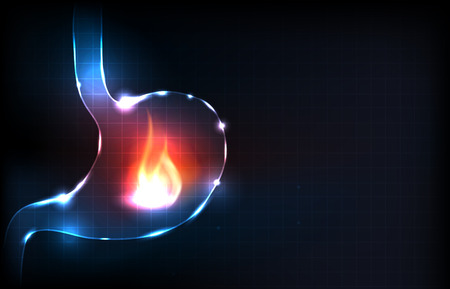 Menschlicher Magen brennt. Feuer im Bauch. Magenschmerzen Konzept. Illustration