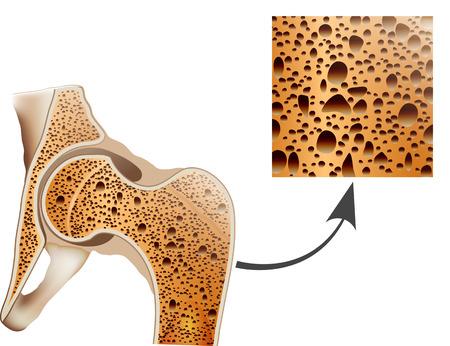 osteoporosis: Osteoporosis in femur bone, human bone anatomy.