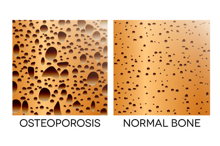 osteoporosis: Osteoporosis, human bone anatomy. Medical illustration healthy bone and unhealthy bone.