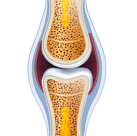 Normal synovial joint anatomy. Healthy joint detailed illustration. Stock Illustratie