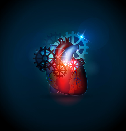 atherosclerosis: Human heart treatment concept on Blue background