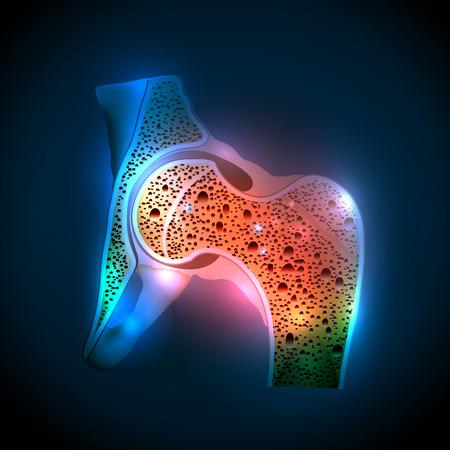 osteoporosis: Articulación de la cadera humana y Osteoporosis en un fondo azul abstracto
