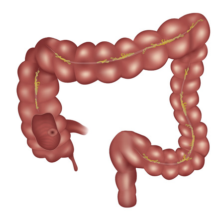 Large intestine anatomy illustration on a white background. Detailed illustration of colon: Ileum, Appendix, Ascending colon, Transverse colon, Descending colon, Sigmoid colon, Rectum and Anal canal.