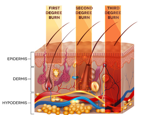 at first: Skin burn classification. First, second and third degree skin burns. Detailed skin anatomy. Illustration