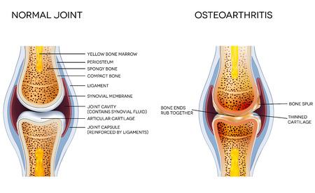 Artrose en normale joint anatomie Stock Illustratie
