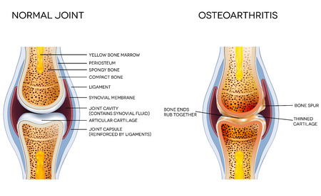 osteoarthritis: Osteoarthritis and normal joint anatomy Illustration