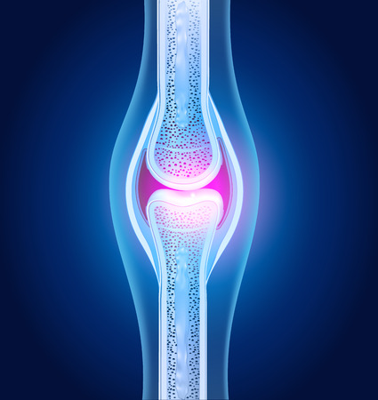 osteoarthritis: Normal joint anatomy abstract blue design