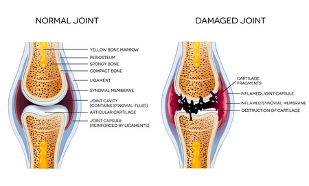 osteoarthritis: Damaged joint and healthy joint detailed diagram