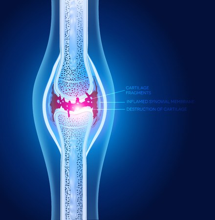 osteoarthritis: Damaged joint illustration, abstract x ray design.