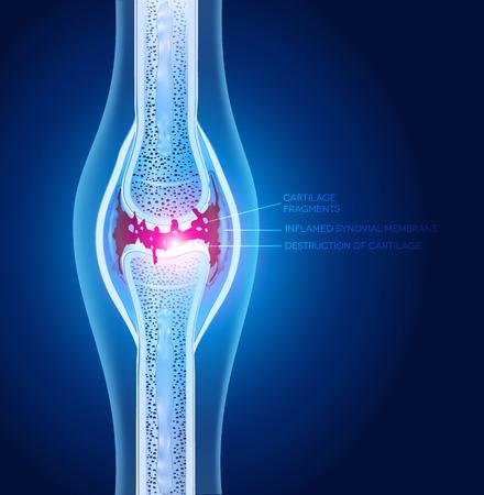 artrosis: Ilustración articulación dañada, diseño abstracto de rayos x.