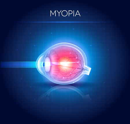 myopia: Myopia eyesight disorder. Myopia is being short sighted. Detailed illustration. Illustration
