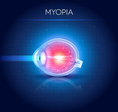 myopia: Myopia eyesight disorder. Myopia is being short sighted. Detailed illustration. Illustration