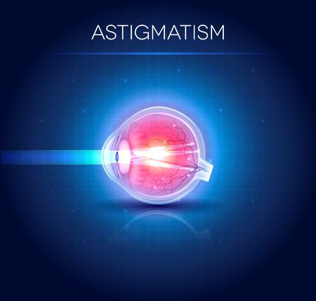eye cross section: Astigmatism eyesight disorder. Anatomy of the eye, cross section.