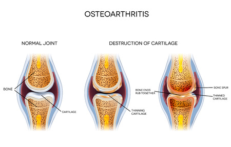 human knee: Osteoarthritis, destruction of cartilage Illustration