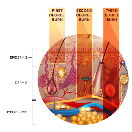 classification: Round shape skin anatomy and skin burn classification stages on a white background