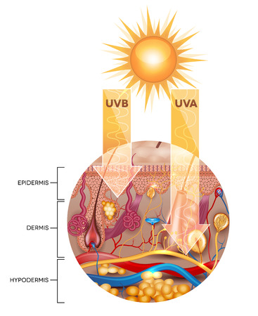 Unprotected skin without sunscreen lotion, UVB and UVA rays penetrates into the skin Illustration