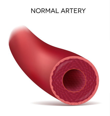 infarctus: Art�re �lastique humain sain, illustration d�taill�e Illustration