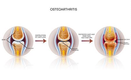 La osteoartritis ilustración detallada. De saludable de las articulaciones para articulación dañada, la destrucción del cartílago.