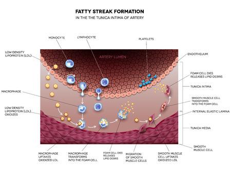 infarctus: La formation de gras s�rie dans l'art�re. Elle peut conduire � une thrombose, la formation d'un caillot de sang � l'int�rieur art�re. Illustration