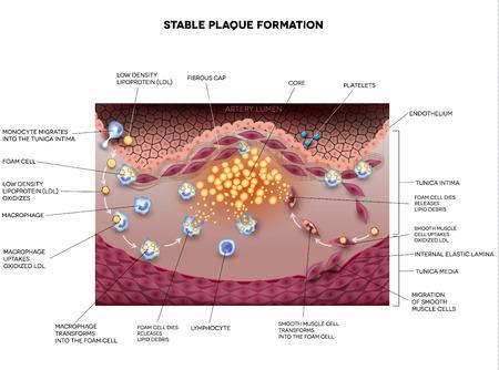 angina: La formación de placa estable en la arteria humana. Ilustración de la ateroesclerosis detallada.