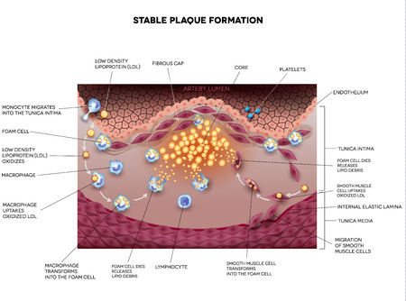 cholesterol: Stable plaque formation in the human artery. Atherosclerosis detailed illustration. Illustration