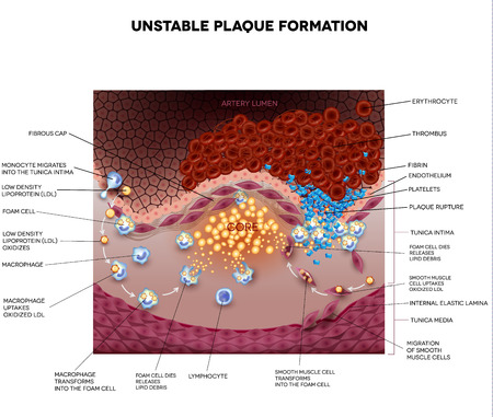 Thrombus, blood clot, unstable plaque formation in the artery. Plaque rupture detailed anatomy illustration. Illustrative diagram how atherosclerosis is progressing till plaque rupture, artery lumen is narrowed and lead to thrombosis and arterial occlusio Illustration