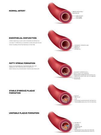 Atherosclerose gedetailleerde illustratie, progressie tot trombus bloedstolsel, instabiele plaquevorming in de slagader. Finnaly slagader lumen wordt versmald en leiden tot trombose en arteriële occlusie. Stock Illustratie