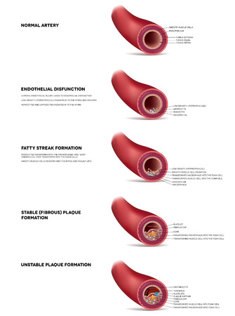 progression: Atherosclerosis detailed illustration, progression till Thrombus, blood clot, unstable plaque formation in the artery. Finnaly artery lumen is narrowed and lead to thrombosis and arterial occlusion.