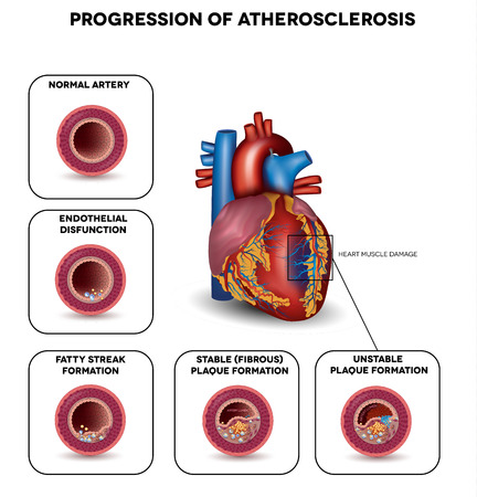 illness: Progression of Atherosclerosis till heart attack. Heart muscle damage due to blood clot in the artery. Very detailed illustration of fatty streak formation, white blood cells infiltration, blood clot formation etc. Illustration