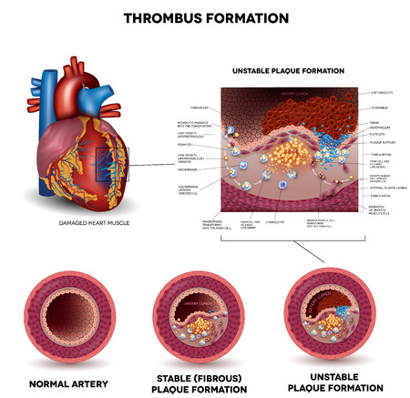 human anatomy: Blood clot formation. Coronary artery disease. Anatomy of Healthy artery, unhealthy arteries, human heart muscle damage and detailed illustration of plaque formation.