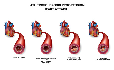 Heart attack, Coronary artery disease. Heart muscle damage due to blood clot in the artery. Very detailed illustration of fatty streak formation, white blood cells infiltration, blood clot formation etc.