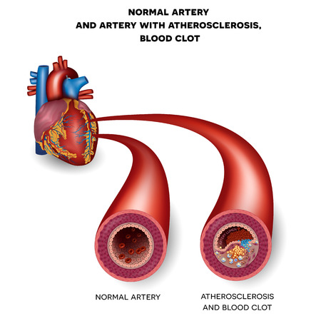 blood flow: Normal artery and unhealthy artery with blood clot. Plaque rupture detailed anatomy illustration. Artery lumen is narrowed and lead to thrombosis Illustration