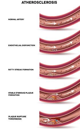 アテローム性動脈硬化。アテローム性動脈硬化の段階の詳細なイラスト、動脈壁が厚くなる, 動脈内の脂質のプラク フォーム。通常の動脈、線維性プラーク形成、プラーク破裂、血液凝固。 写真素材 - 38814974