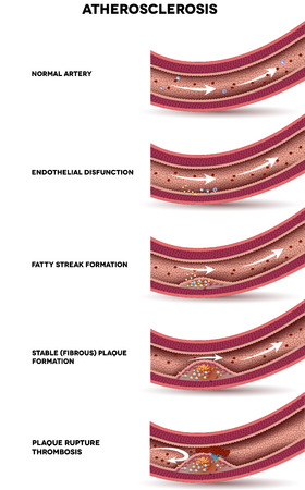 thrombus: Atherosclerosis. Detailed illustration of Atherosclerosis stages, artery wall thickens, lipid plaques forms within artery. Normal artery, Fibrous plaque formation, plaque rupture and blood clot.