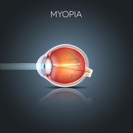 miopia: Miopia. La miopia � miope (miope). Far oggetto via sembra sfocata. Miopia corretto da un obiettivo meno. Anatomia dettagliato dell'occhio, sezione trasversale.
