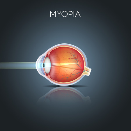 myopia: Myopia. Myopia is being short sighted (near sighted). Far away object seems blurry. Myopia corrected by a minus lens. Detailed anatomy of the eye, cross section.