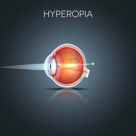 hyperopia: Ipermetropia. Ipermetropia � lungimirante (lungimirante). Vicino oggetto appare sfocata. Ipermetropia corretto da una lente pi�. Anatomia dettagliata dell'occhio, sezione trasversale.