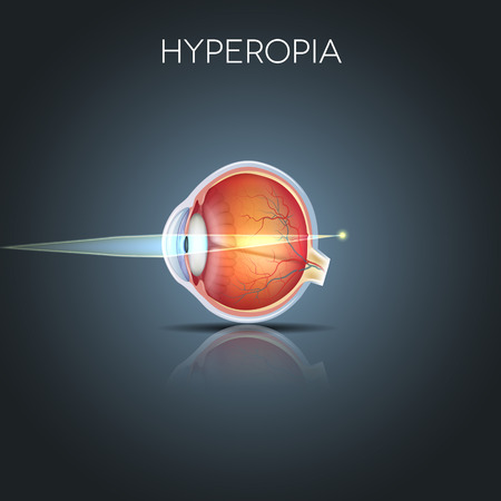 Hyperopia. Hyperopia is being long sighted (far sighted). Near object seems blurry. Hyperopia corrected by a plus lens. Detailed anatomy of the eye, cross section.