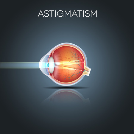Astigmatism. Eyesight problem, blurred vission. Anatomy of the eye, cross section.
