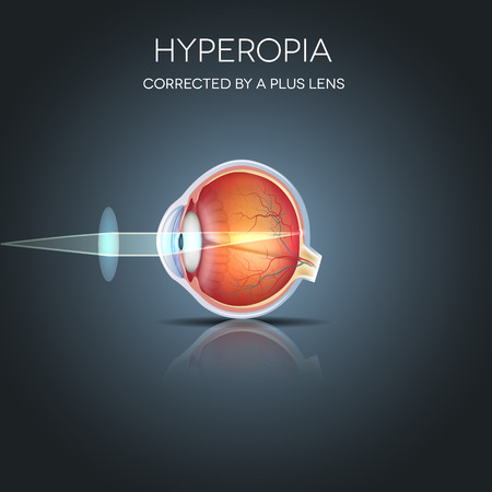 Hyperopia corrected by a plus lens. Hyperopia is being long sighted (far sighted). Near object seems blurry. Illustration