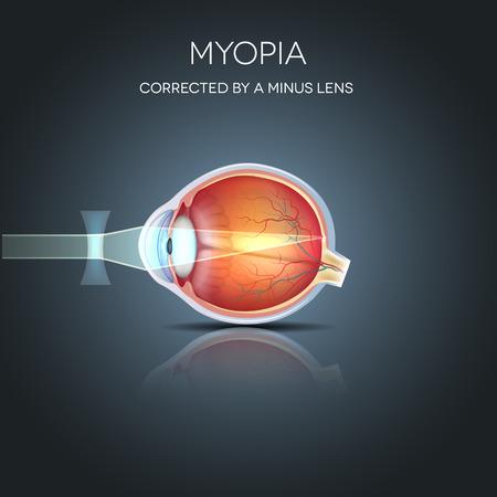 Miopía corregido por una lente menos. La miopía se está corto de vista (miope). Lejos objeto lejos parece borrosa. Foto de archivo - 38814987