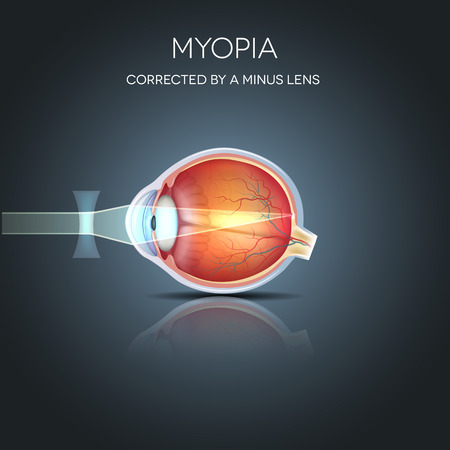 Myopia corrected by a minus lens. Myopia is being short sighted (near sighted). Far away object seems blurry.