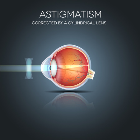 eye cross section: Astigmatism corrected by a cylindrical lens. Eyesight problem, blurred vission. Anatomy of the eye, cross section. Illustration