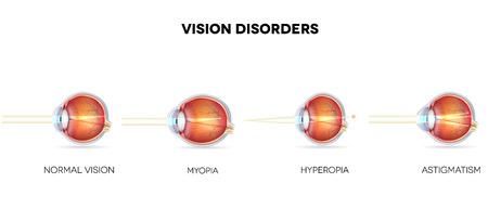 miopia: Disturbi della vista. Occhio normale, astigmatismo, ipermetropia e miopia.