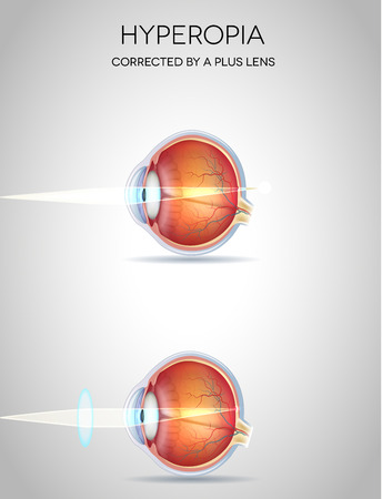 hyperopia: Hyperopia and Hyperopia corrected by a plus lens. Eye vision disorder