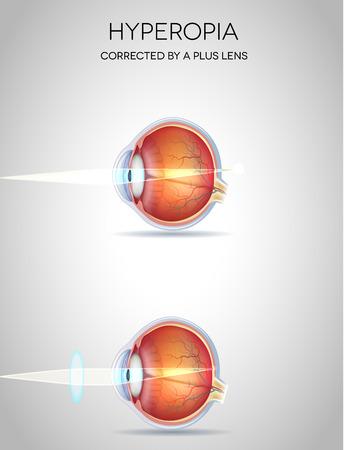hyperopia: Ipermetropia e ipermetropia corretti da una lente in pi�. Disturbo visione Eye Vettoriali