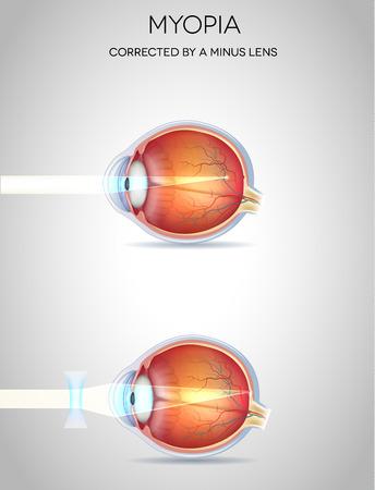miopia: Miopia miopia e corretto da una lente meno. Disturbo visione Eye