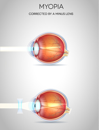 Myopia and myopia corrected by a minus lens. Eye vision disorder Illustration
