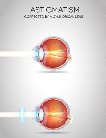 farsighted: Astigmatism and Astigmatism corrected by a cylindrical lens. Eye vision disorder Illustration